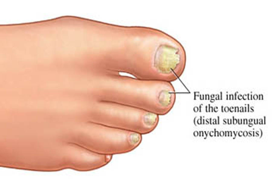 Nail Fungus Treatment with Coconut Oil - Healthng