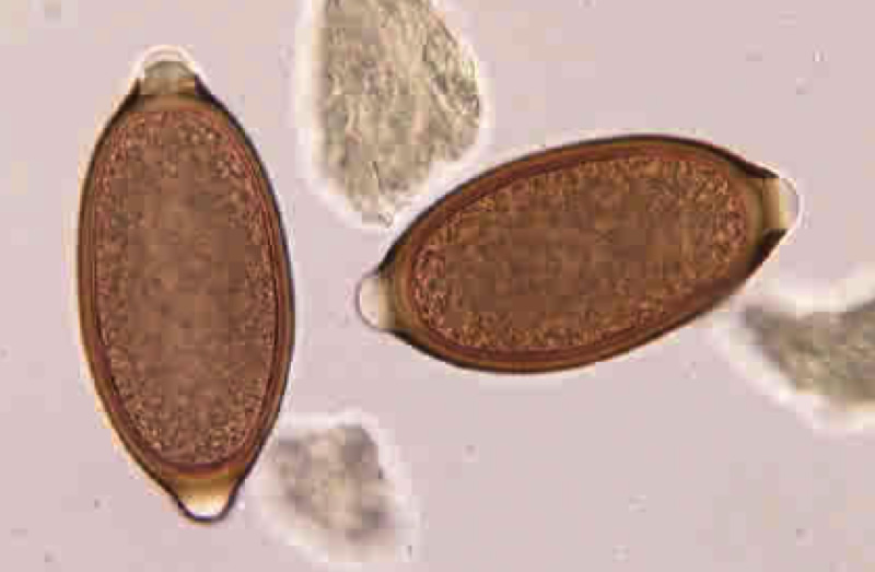 All You Need To Know About Common Intestinal Parasites